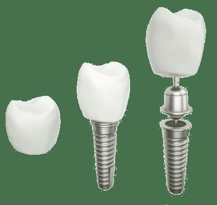 Implantologie Frankfurt Zahnimplantate