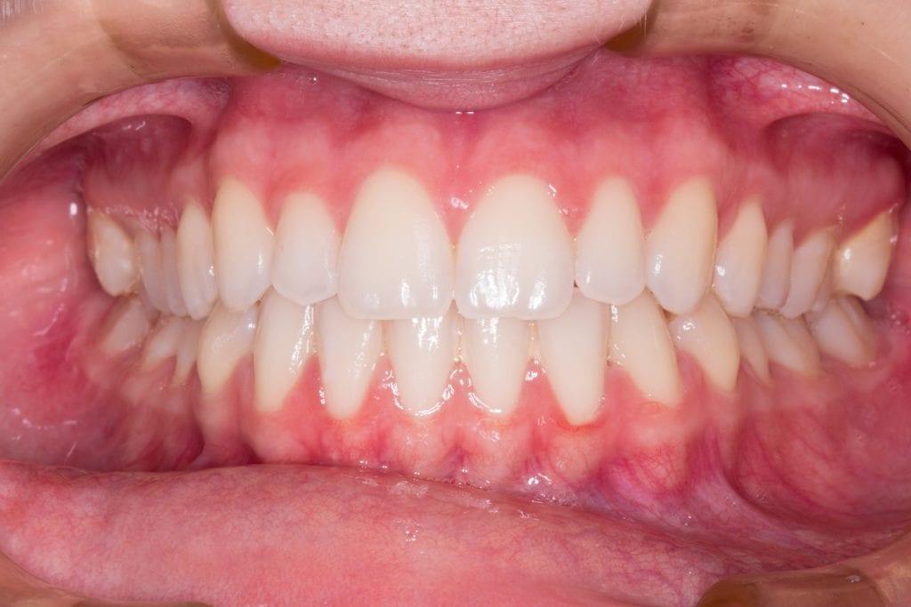 Das Problem mit dem Zahnfleisch